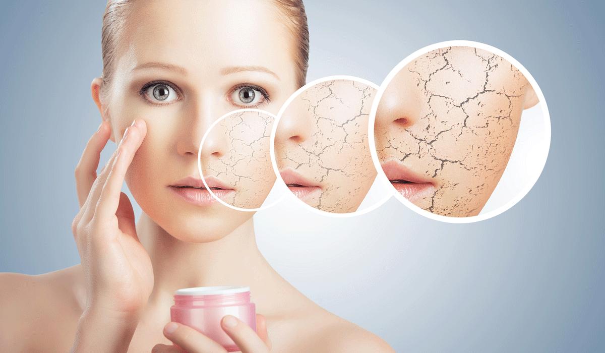 صورة علاج البشرة الجافة , ماسكات لعلاج البشرة الجافة