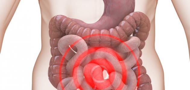 صورة القولون العصبي , اعراض واسباب القولون العصبي