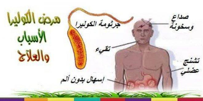 صور اعراض مرض الكوليرا , ما هو مرض الكوليرا
