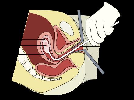 بالصور حركات للاجهاض , اجهاض الحامل 4454