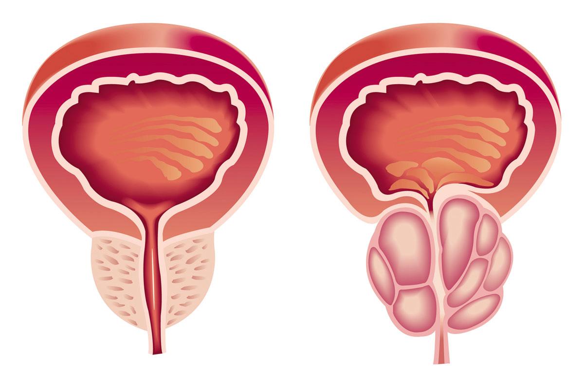 صورة علاج تضخم البروستاتا , تضخم البروستاتا واهم اسبابها وطرق علاجها