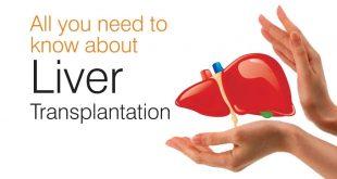 صورة علاج تليف الكبد , اعراض وعلاج تليف الكبد
