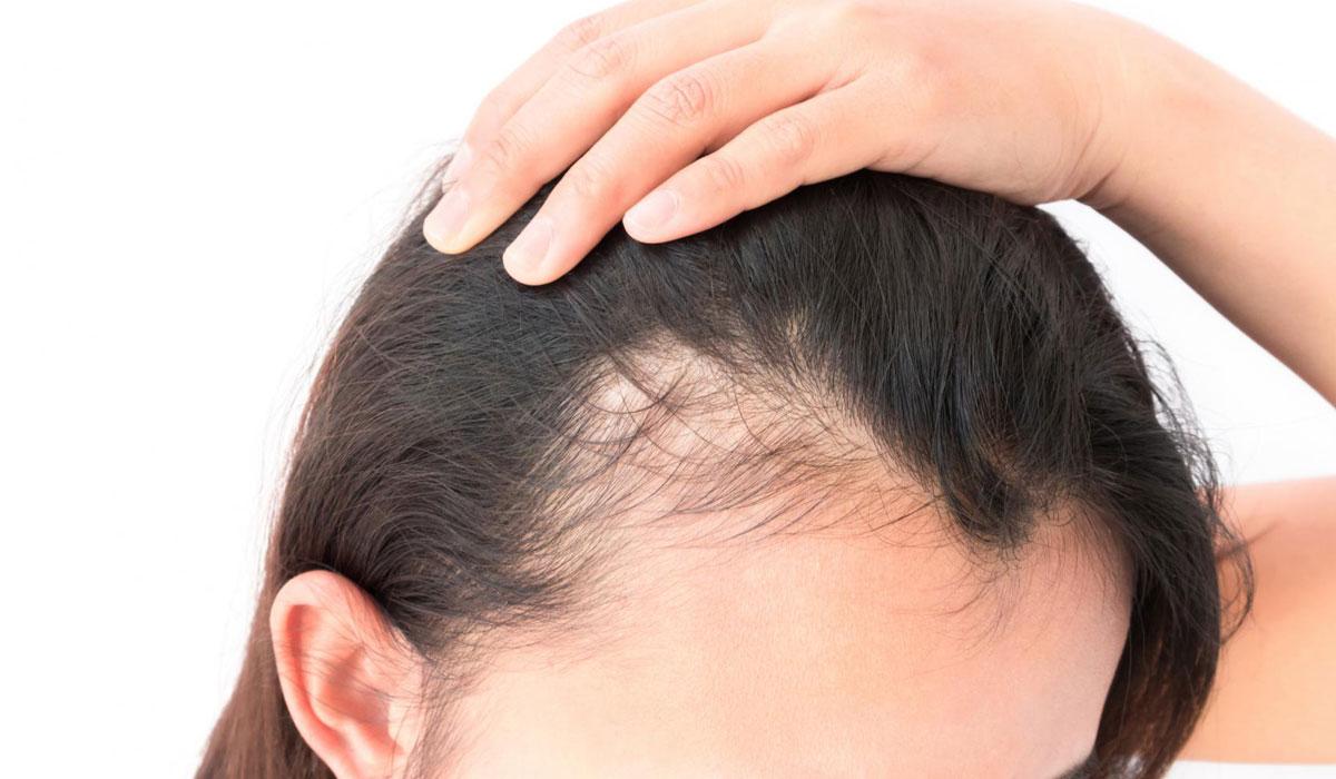 صورة علاج لتساقط الشعر , اسرع علاج لتساقط الشعر