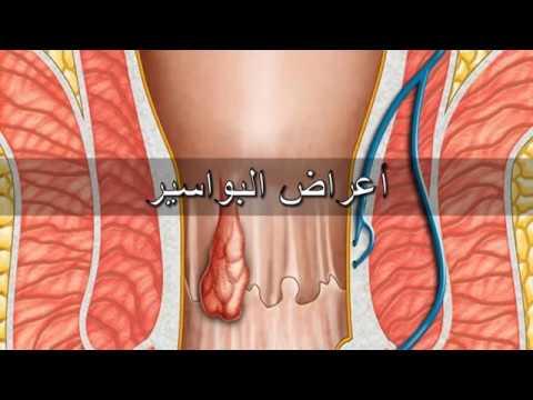 صور اعراض البواسير , مخاطر واعراض البواسير