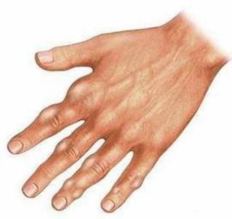 صورة مرض النقرس , اعراض مرض النقرس