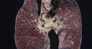 صورة اعراض سرطان الرئة , طريقة تشخيص سرطان الرئة