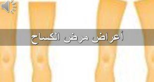 صورة مرض الكساح , علاج مرض الكساح