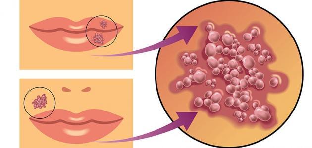 صورة مرض الهربس , ما هو مرض الهربس و علاجه