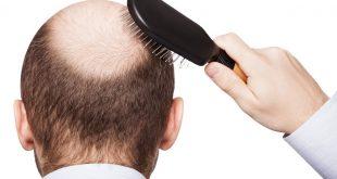 صور علاج تساقط الشعر للرجال , اسباب تساقط الشعر لدي الرجال وعلاجه