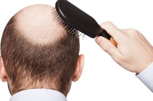 صورة علاج تساقط الشعر للرجال , اسباب تساقط الشعر لدي الرجال وعلاجه