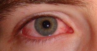 صور علاج حساسية العين , اسباب وعلاج حساسية العين