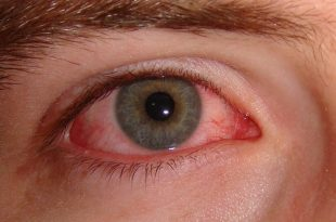 صورة علاج حساسية العين , اسباب وعلاج حساسية العين