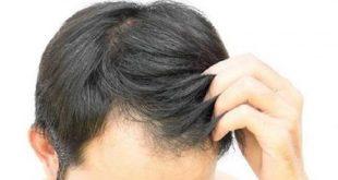 صور حكم صبغة الشعر للرجال , هذا هو راي الدين في صباغة شعر الرجال