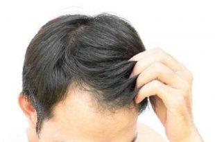 صورة حكم صبغة الشعر للرجال , هذا هو راي الدين في صباغة شعر الرجال
