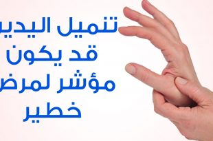 بالصور اسباب خدر اليد , لا استطيع تحريك يدي فما السبب 10654 3 310x205