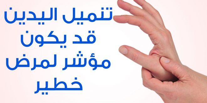 بالصور اسباب خدر اليد , لا استطيع تحريك يدي فما السبب 10654 3 660x330