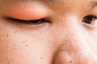 صور تخفيف تورم الوجه , كيفية ازالة انتفاخ الوجه واعادته الى شكله الطبيعي