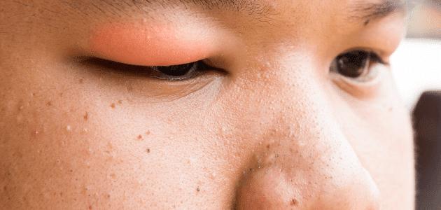 صورة تخفيف تورم الوجه , كيفية ازالة انتفاخ الوجه واعادته الى شكله الطبيعي