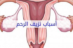 صورة اسباب نزيف الرحم , هذه اهم اسباب نزيف الرحم التي يجب معرفتها