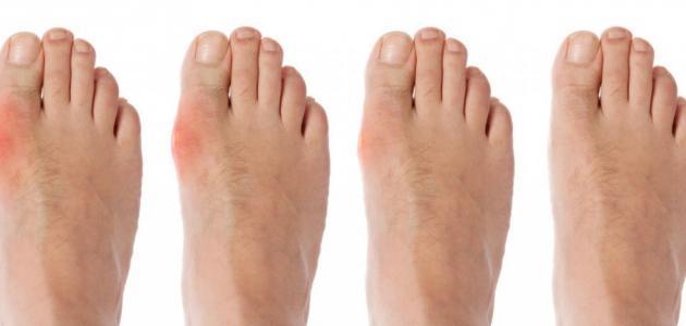 صورة ما هو مرض النقرس , تعرف على اعراضة 3306 2