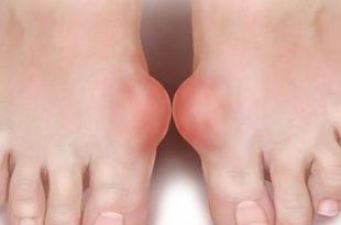 صورة ما هو مرض النقرس , تعرف على اعراضة
