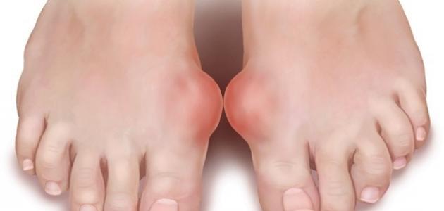 صورة ما هو مرض النقرس , تعرف على اعراضة 3306