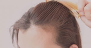 صورة علاج تساقط الشعر , وصفات سحرية لعلاج تساقط الشعر