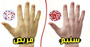 صورة ما هي اسباب فقر الدم , اعراض فقر الدم عند الاطفال