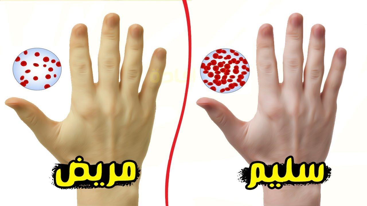 صورة ما هي اسباب فقر الدم , اعراض فقر الدم عند الاطفال 1359