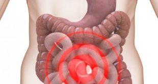 صورة اعراض القولون العصبي عند النساء , القولون العصبي والهرمونات