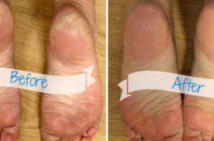 صورة ما سبب جفاف القدمين , اسباب تشقق باطن القدمين