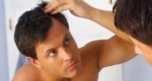 صورة كيف تحافظ على شعرك من التساقط , نصائح لتجنب تساقط الشعر