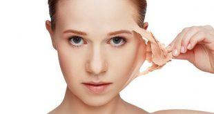 صورة ازالة الجلد الميت من الوجه , التخلص من الجلد الميت على الوجه
