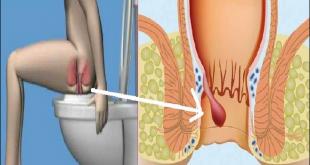 صورة اعراض البواسير , اعراض الاصابة بالبواسير