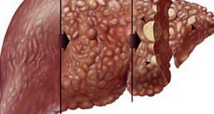صورة اضرار تليف الكبد , ما هي اعراض تليف الكبد