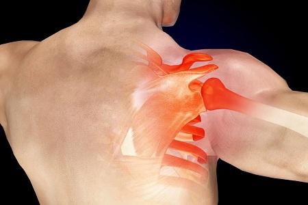 صورة اعراض الروماتيزم العضلى 10956 1