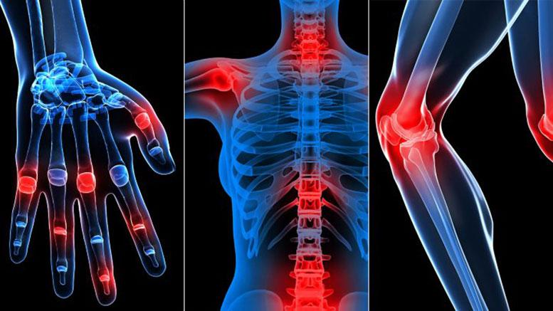 صورة اعراض الروماتيزم العضلى 10956 2